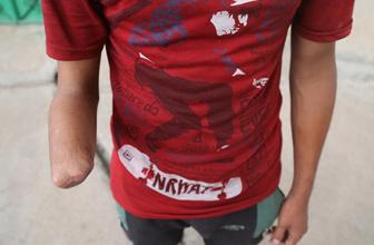 IŞİD, hırsızlık yaptı iddiasıyla bir gencin elini kesti