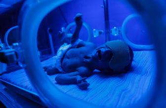 527 bebek açlık ve ilaçsızlıktan öldü!