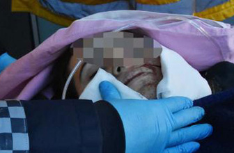 Eşinin iki yanağına bıçakla çarpı atan koca serbest kaldı!
