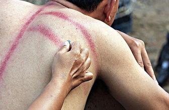 Endonezya'da soğuk algınlığına 'bozuk paralı' tedavi