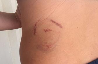 Bodrum'da iki kişi kaplumbağa saldırısına uğradı!
