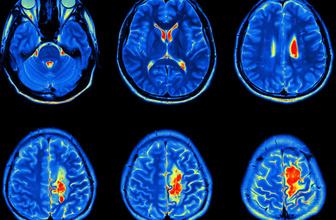 Beyin tümörü tedavi edilebilir mi? Beyin tümörü ve tedavisi...