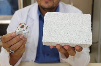 Türk akademisyenden büyük başarı! Yerli imkanlarla yapay kemik üretti