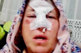 Annesine boynuz atıp yaralayan koçu kesti
