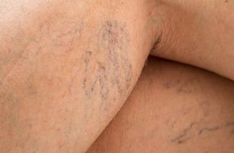 Varis için hangi doktora gidilmeli bacakları şişiren varisin alınması şart