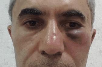 Sağlıkta şiddet! Gereksiz ameliyatta hekimler birbirlerini dövdü