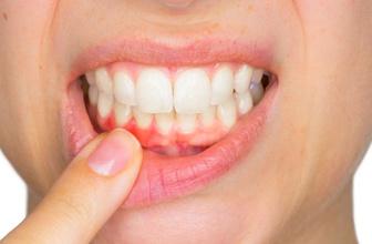 Diş eti problemlerini hafife almayın! Diş kaybına kadar gidiyor