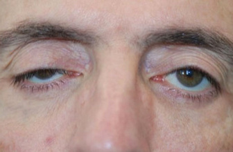 Göz kapağı düşüklüğü kimlerde daha çok görülür tehlikesi var mıdır?