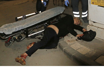 Adana'da sokakta yürüyen travestiye bıçaklı saldırı