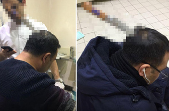 Taksim'de dehşet olay! Şefi, kafasından bıçakladı