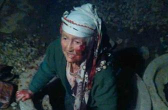 Üstü açık bırakılan rögara düşen yaşlı kadın yaralandı