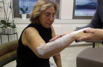 Estetisyen doktora beyzbol sopasıyla saldırı