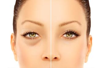 Torbalanmaları yok eden göz altı ışık dolgusunun zararları var mıdır