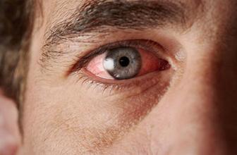 Gözlerin fazla sulanması ne anlama gelir?