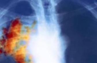 Meme kanseri ilacı akciğer kanserine umut oldu