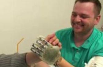 'Hissedebilen' protez el yapıldı