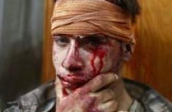 Suriye: Duma'daki hava saldırısında ölenlerin sayısı 100'ü aştı