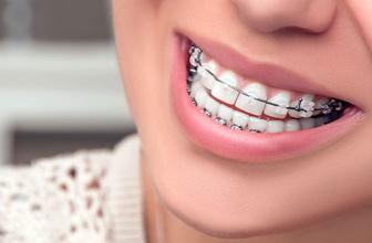 Diş teli fırçasının yararları nelerdir?