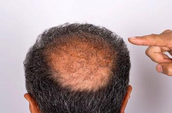 Saç dökülmesi 100 telden fazlaysa kellik kapıda! Bir daha hiç çıkmayabilir