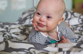 Anne karnındaki bebeğin down sendromlu olup olmadığı nasıl anlaşılır?