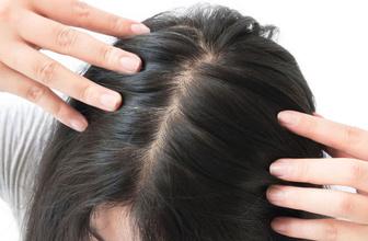 Sürekli kullanılan ilaçların tehlikeli sonucu: Saç dökülmesi
