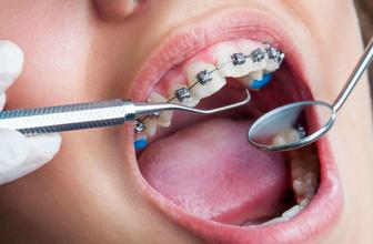 Diş teli ağızda ne kadar kalır işte yapılması gerekenler