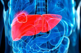 Karaciğer kanseri nedenleri ve dikkat edilmesi gerekenler