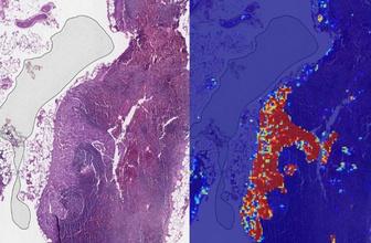 Google, yapay zeka ile akciğer kanserini erken teşhis edebilecek