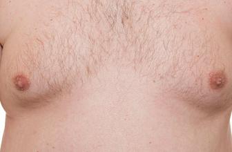 Erkeklerde meme büyümesi neden olur tedavisi nasıldır?