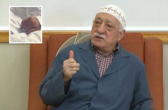 Fetullah Gülen intihar girişiminde bulundu iddiası Fuat Uğur fotoğraf paylaştı