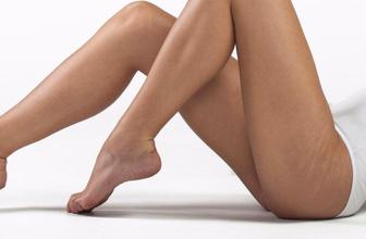 Vücuttaki çatlak çizgileri nasıl giderilir? İşte güvenli tedavi yöntemi