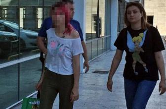Depozitosunu alamayan genç kız ev sahibini sevgilisine dövdürttü