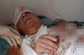 Terörist Mihraç Ural, patlamada yaralandı iddiası