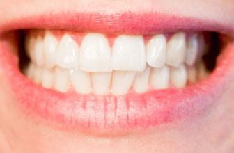 Bleaching nedir diş beyazlatmak için bleaching faydalı mıdır?