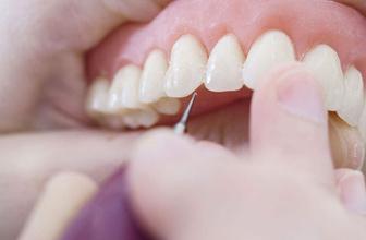 Tansiyon hastaları dikkat! Diş problemleri hakkında önemli uyarılar