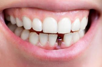 Uzman uyardı! Diş sağlığında kemik kaybı oluşmadan implant yapılmalı