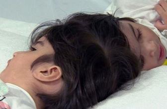 Dünya bu ameliyatı konuşuyor 100 doktor girdi 50 saatte yapışık ikizler birbirinden ayrıldı