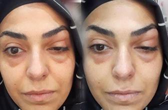 Göz çevresine botoks yaptıran talihsiz kadın az kalsın gözünden oluyordu
