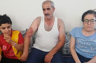 Mardin'de 'Bana niye oy vermedin' dayağı pes dedirtti