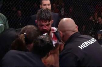 Vicente Luque Mike Perry'nin burnu kırıldı suratı tanınmaz hale geldi