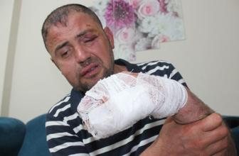 Bursa'da büyük terbiyesizlik gazi olduğunu söylemesine rağmen saldırdılar