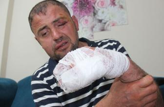 Bursa'da gazimizi öldüresiye darp eden 3 kişi hakkında yeni gelişme! Hak yerini buldu