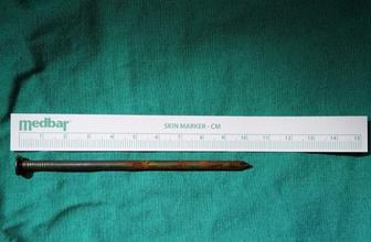 Yaşlı adamın boğazından 10 Santimetrelik çivi çıkarıldı