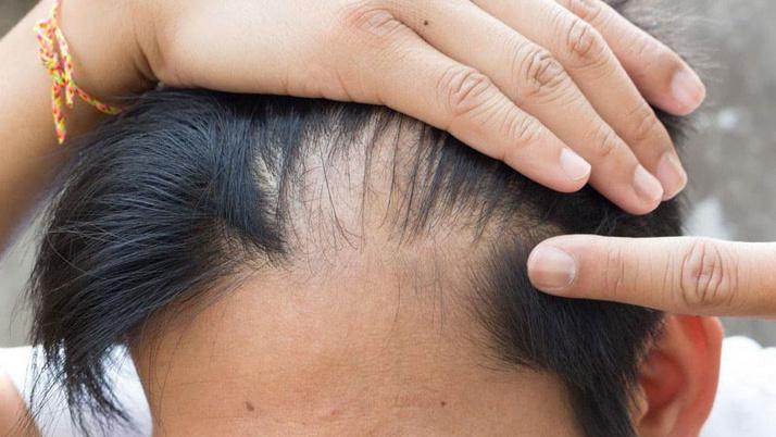 Saç dökülmesi neden olur bazı ilaçlar kel bırakıyor saç kıran da kötü