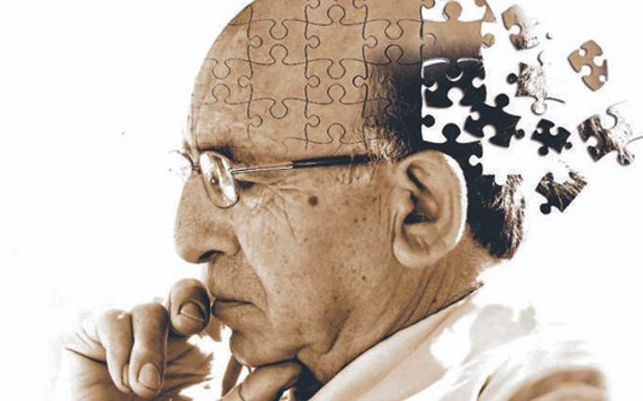 Alzheimer'da korkutan rakam! Tam 73 milyon...