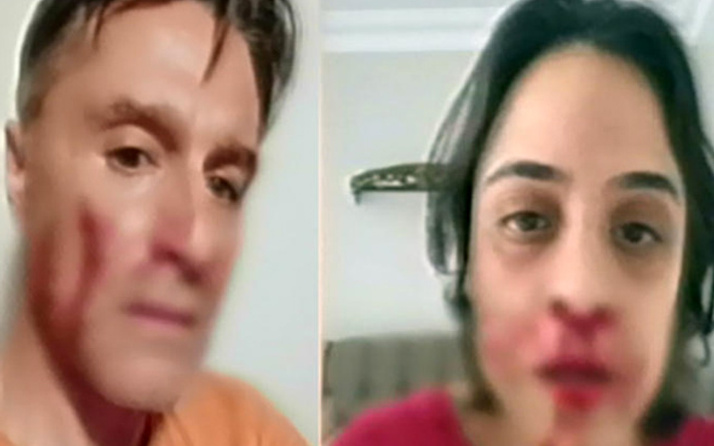 Hazım Körmükçü kimdir sevgilisi Zeynep Tandoğan'ı neden dövdü