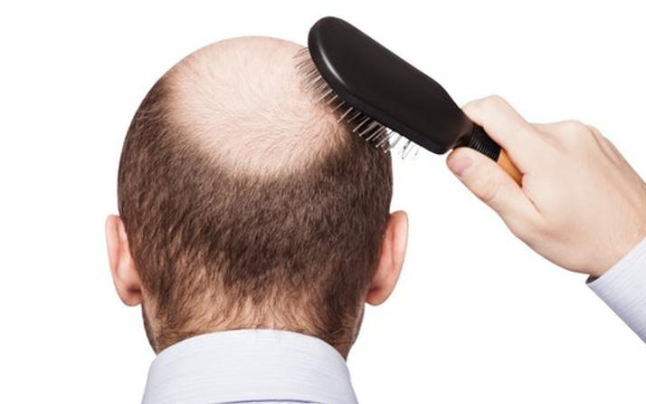 Saç dökülmesine çözüm B12 vitamini C vitamini ise saçı uzatıyor