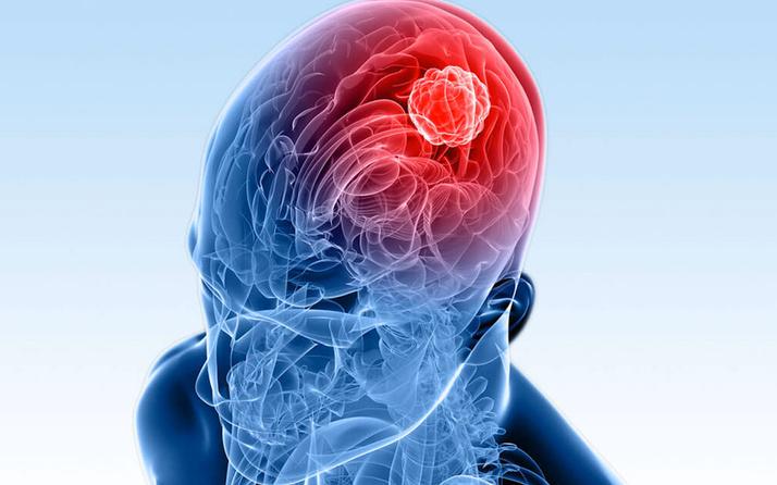 Uzmanlar beyin tümörünün bu belirtileri konusunda uyardı