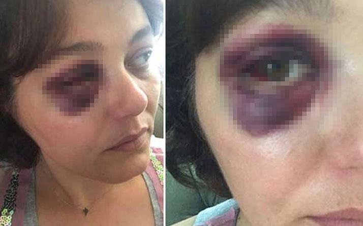 Kadıköy'de yemek yiyen kadın dehşeti yaşadı!