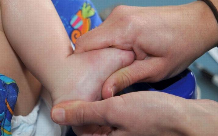 Uzmanlardan yeni doğan bebekler için çarpık ayak hastalığı uyarısı!